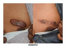 Scar and Keloid Clinic